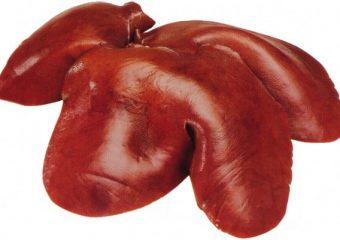 A maioria das pessoas acha que a cirrose é uma doença relacionada apenas ao abuso excessivo do álcool, porém, esse quadro pode ser causado por infecções ou inflamações no fígado.