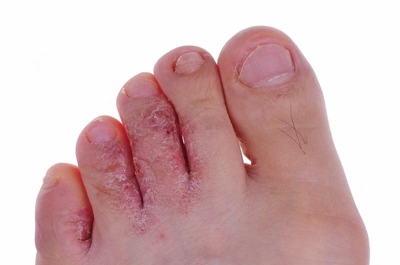 Micoses são infecções na pele que podem ser superficiais ou profundas. Elas podem se desenvolver em qualquer parte do corpo, porém, os riscos são consideravelmente mais altos de que atinjam áreas mais ricas em queratina e que sejam menos ventiladas, mais quentes e úmidas.