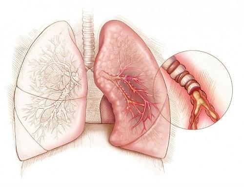 Tudo sobre asma. Vivernatural.com.br