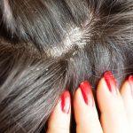 Causas e tratamentos para caspa