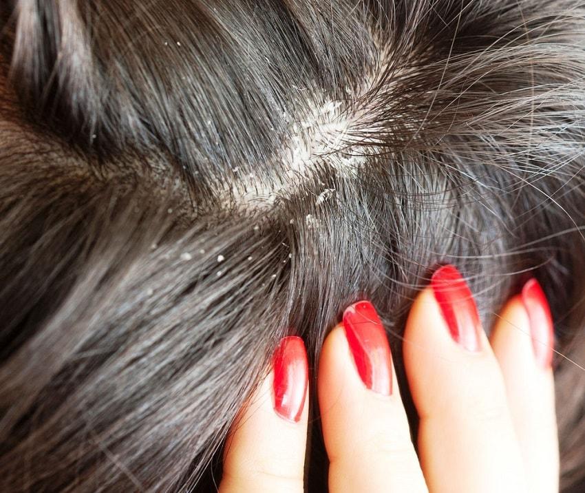 Você sabia que o couro cabeludo – assim como a nossa pele – se descama? Pois bem, isso acontece por conta da renovação de suas células.