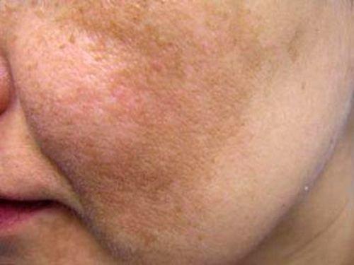 Melasma é um distúrbio pigmentar da pele decorrente da deposição aumentada da melanina (proteína que provê a coloração da pele)