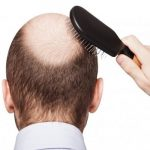 Alopecia: um nome que muitas pessoas não reconhecem, mas do qual milhares sofrem