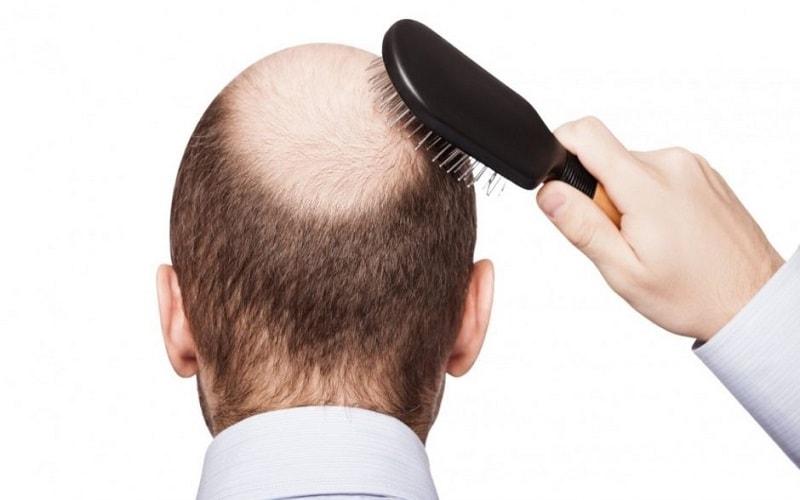 O que é Alopecia? Alopecia é uma infecção caracterizada pela redução parcial ou total dos pelos/cabelos de uma determinada área do corpo.