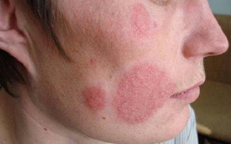 Candidíase vaginal, ou Monilíase vaginal, é uma infecção ocasionada por fungos. O agente causador é Cândida ou Monília e geralmente causa corrimento espesso