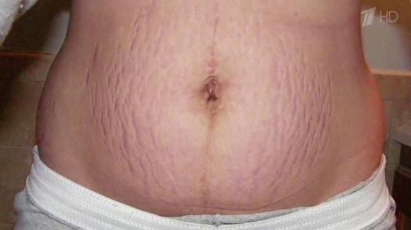 óleo essencial estria gravidez gestação pele rosa alecrim